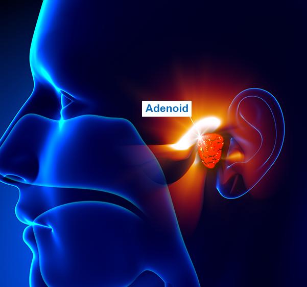 adenoidite