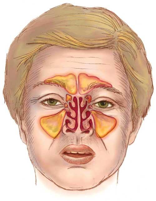 Sinusite cronica intervento laser senza tamponi for Seni diversi