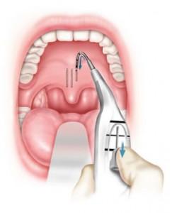 FIGURA 3: La procedura Pillar avviene grazie all'uso di una sonda monouso per l'inserimento dei bastoncini ad irrigidimento del palato.