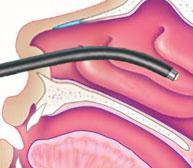 La tecnologia a risonanza quantica molecolare Coblator: adenoidectomia endoscopica senza anestesia generale.