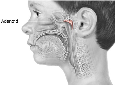 ipertrofia adenoidi