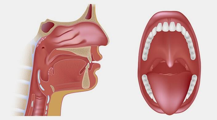 La normale conformazione di palato e ugola, visibili per intero con la bocca aperta.