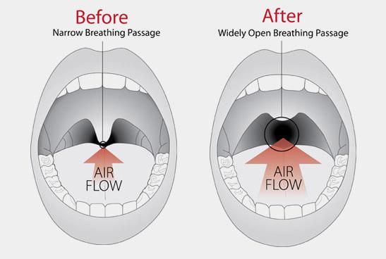 Figura 3: La riduzione di lunghezza e spessore del palato riduce le vibrazioni della mucosa ed aumenta lo spazio per l'aria.