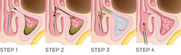 Figura 2: La nuova terapia per sinusite cronica con palloncino, senza dolore e senza tamponi.