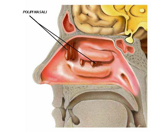 Polipi nasali e poliposi nasale for Interno del naso