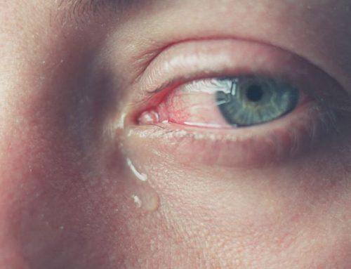 Occhio che lacrima